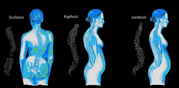 LORDOSIS, KYPHOSIS AND SCOLIOSIS